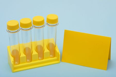 testtube: A set of yellow test tubes with a blank yellow card on a blue background, medical research