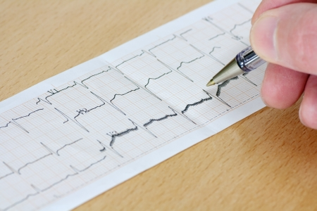 Excitedly heart. Mild sings of arrhythmia. Close up of ECG graph on brown wood table. photo