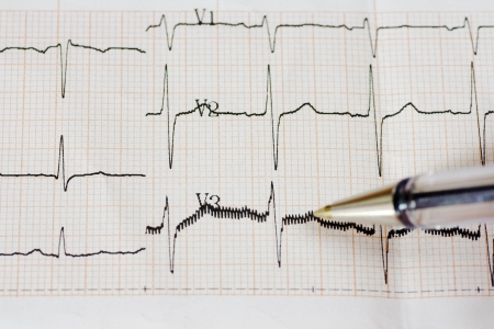 Excitedly heart. Mild sings of arrhythmia. Close up of ECG graph. photo