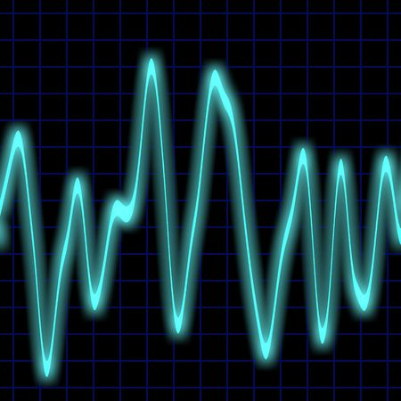 Irregular heartbeat on a neon blue monitor  Фото со стока