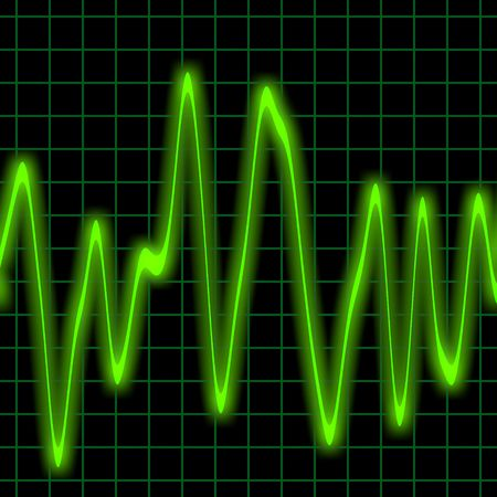 Irregular heartbeat on a neon green monitor