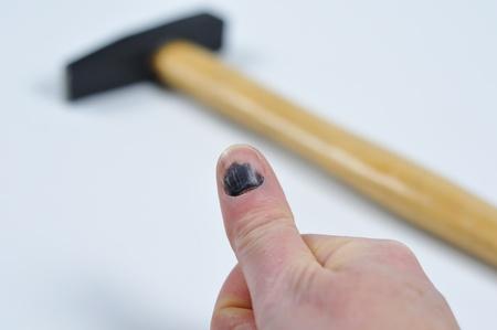 Blue fingernail, after a blow with the hammer. Standard-Bild