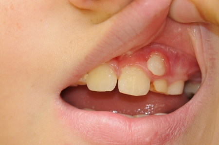 stood up: Teeth in the child s mouth open  Little  child teeth mouth on face macro  Stock Photo