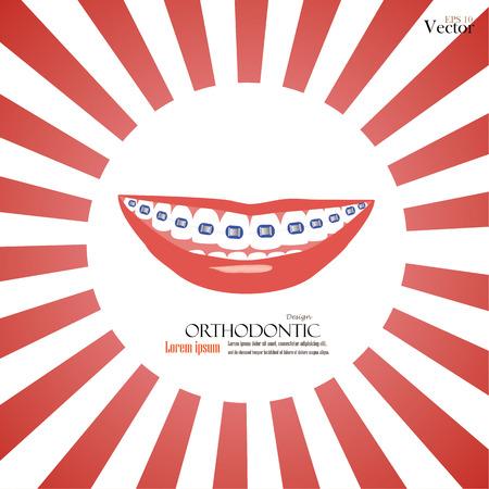 orthodontics: ortodoncia vector firmar en background.teeth rayos de sol con la ilustraci�n braces.vector. Vectores