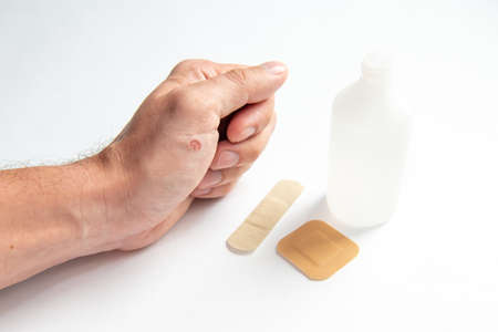 disinfecting the wound on the hand and applying a patch. Stock Photo