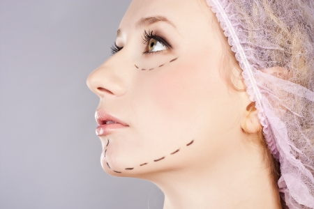 Cosmetic botox injection, in the female face photo