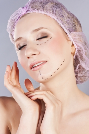 correction lines: Close up of woman face with correction lines, before plastic surgery operation Stock Photo