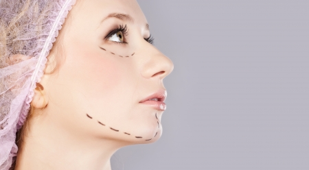 Drawn lines on womans face, marks for facial plastic surgery photo
