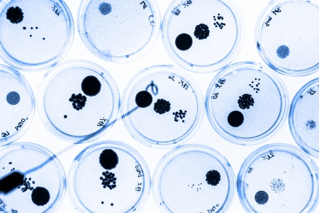 agar: Growing Bacteria in Petri Dishes on agar gell as a part of scientific experiment. Stock Photo