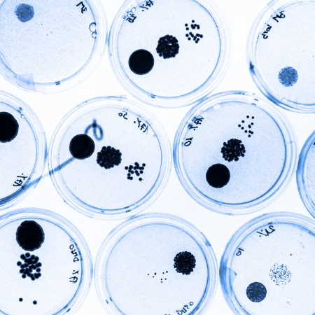 swab: Growing Bacteria in Petri Dishes on agar gell as a part of scientific experiment. Stock Photo