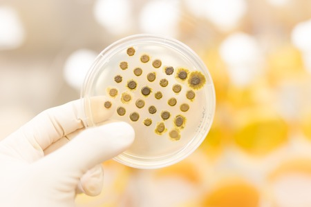 fungi: Close up of cell culture samples on LB agar medium in petri dish.  Agar plates are used by biologists to culture cells, mold, fungi, bacteria or small moss plants. Stock Photo