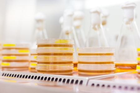 agar: Close up of cell culture samples on LB agar medium in petri dish in laminar flow. Agar plates are used by biologists to culture cells, mold, fungi, bacteria or small moss plants. Stock Photo