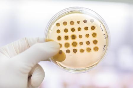 bacterias: Cerca de muestras de cultivo celular en medio de agar LB en placa de Petri. Las placas de agar se utilizan por los biólogos a células de cultivo, moho, hongos, bacterias o pequeñas plantas de musgo. Foto de archivo