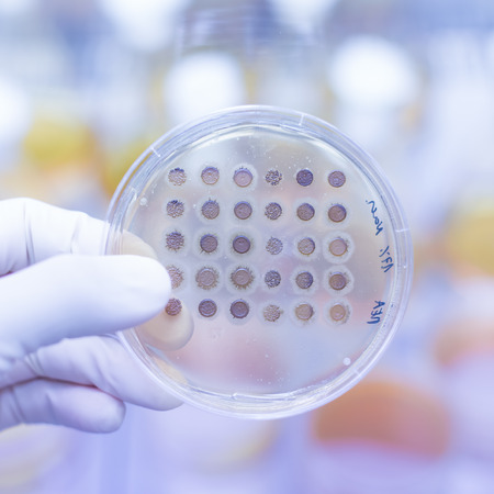 agar: Close up of cell culture samples on LB agar medium in petri dish.  Agar plates are used by biologists to culture cells, mold, fungi, bacteria or small moss plants. Stock Photo