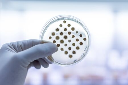 Scientist growing bacteria in dishes on agar gel as a part of scientific experiment.