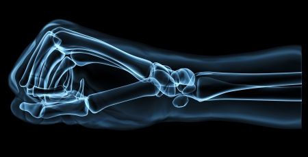strong skeleton: hand under x-ray Stock Photo