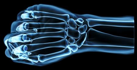 hand under x-ray Stock Photo