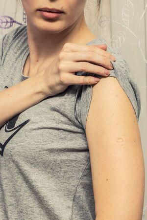 Woman with smallpox following BCG vaccination against TB vaccine on her arm
