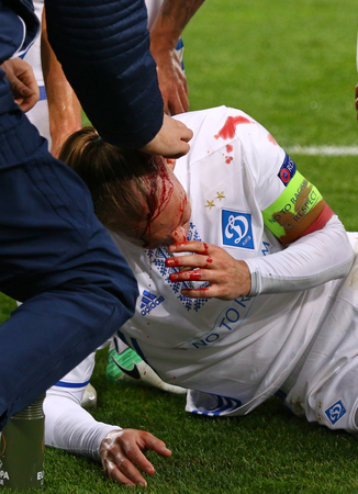 KYIV, UKRAINE - OCTOBER 26, 2017: Domagoj Vida of FC Dynamo Kyiv covered in blood after head injury during UEFA Europa League game against Young Boys at NSC Olimpiyskyi stadium in Kyiv, Ukraine Editöryel