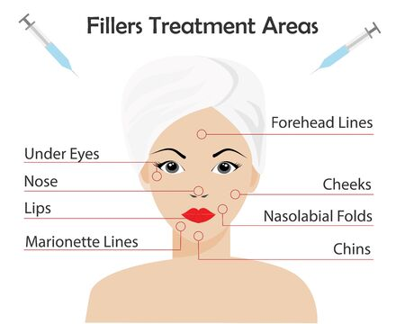 Dermal Fillers Injection Treatment areas. Beautiful woman's face with red points show injection area. Idea for beauty plastic surgery, cosmetology, professional anti aging concept.Vector Illustration.
