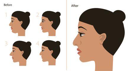 Plastische Chirurgie Gesicht und Kopf vorher nachher. Vektor-Illustration.