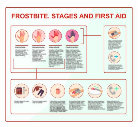 Frostbite - symptoms, protection and treatment. infographics illustration in vector. First aid while hypothermia. 일러스트