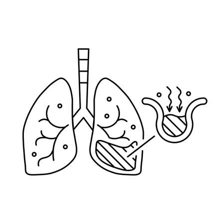 Pneumonia fills the lung's alveoli with fluid