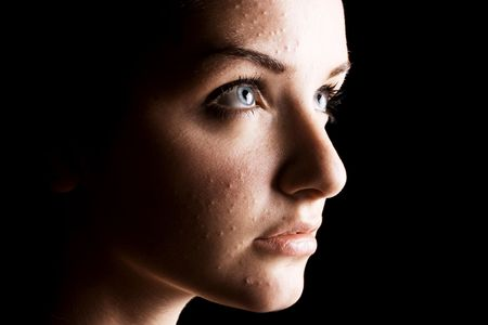 Un primo piano di una giovane donna con la pelle spotty in OIF davanti uno sfondo nero. Ad alto contrasto. Archivio Fotografico