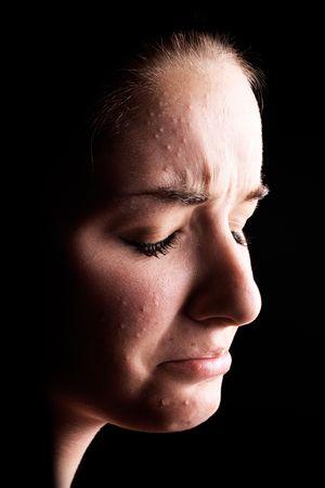 mujer llorando: Un acercamiento de una mujer joven con la piel con manchas y una cara triste delante de un fondo negro. Alto contraste.
