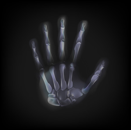tomography: vector x-ray hand on black background Illustration