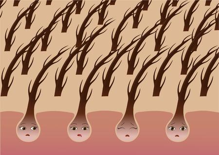 Cartoon hair follicles on the scalp suffer from dryness