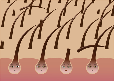 Cartoon hair follicles on the scalp suffer from brittleness Illustration