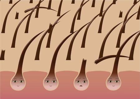 Cartoon hair follicles on the scalp suffer from brittleness Ilustração