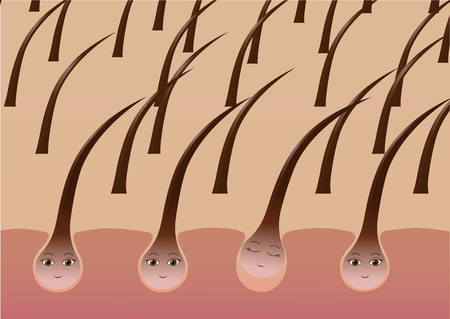 Cartoon hair follicles on the scalp suffer from loss