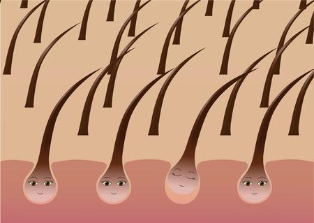 Cartoon hair follicles on the scalp suffer from loss