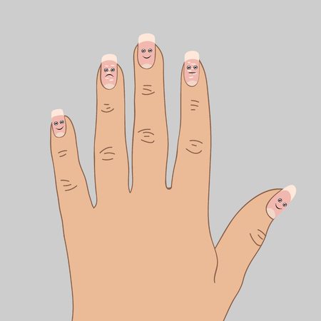 White spots on the nails. Cartoon vector illustration Çizim