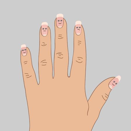 Dystrophic ridges on the nails. Cartoon vector illustration Çizim