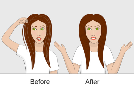 The girl before and after using the remedy for hair pigmentation Illustration