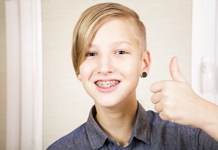 briquettes: Teen with braces on his teeth. Orthodontics and bite correction. Stock Photo