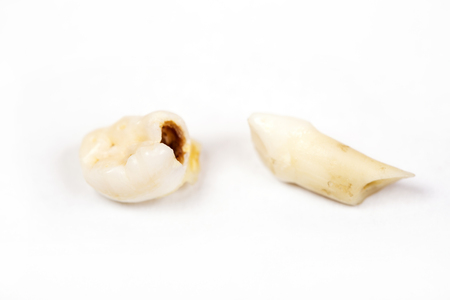 Pulled-out milk teeth with the resolved root isolated on white