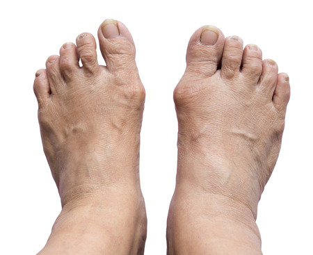 foot doctor: Foot, Bunion - hallux valgus on white background