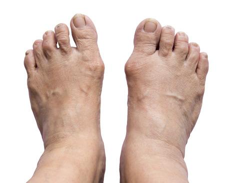 Foot, Bunion - hallux valgus on white background