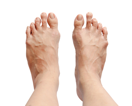 Bunion - hallux valgus, toe too long isolated on white background and clipping path