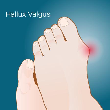 Bunion- hallux valgus vector on blue background