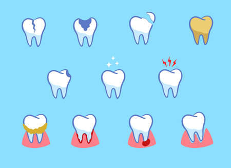 Dental diseases set. Teeth problems, different injuries. Infographics in dentistry. Collection of icons. cartoon style. Vector illustration