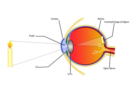 surgical removal: eye Illustration