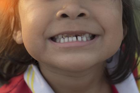 little girl and broken teeth