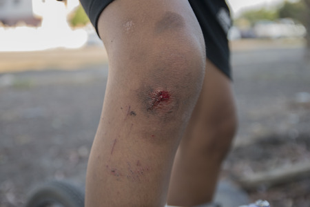 Infected wound on leg.