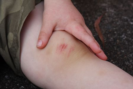 scab: Young boy shows his bruised and grazed knee