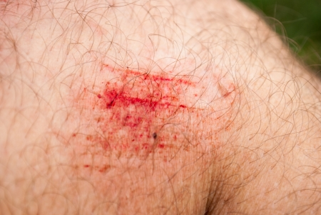 scratches: knee injury after a fall from a bicycle Stock Photo